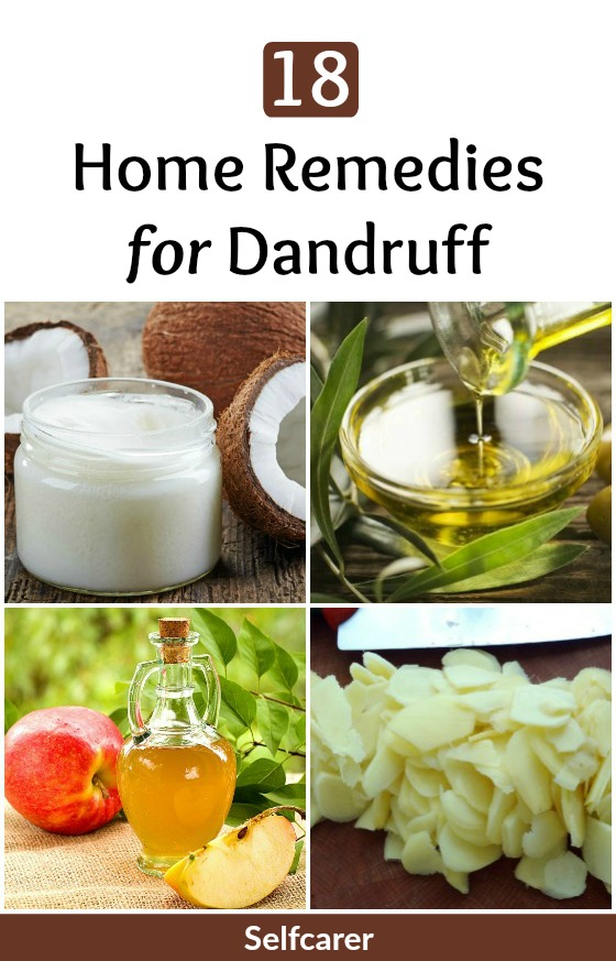 Dandruff can even be controlled with easy to follow home remedies. It is true that home remedies take time to show results but they can effectively treat the problem completely.