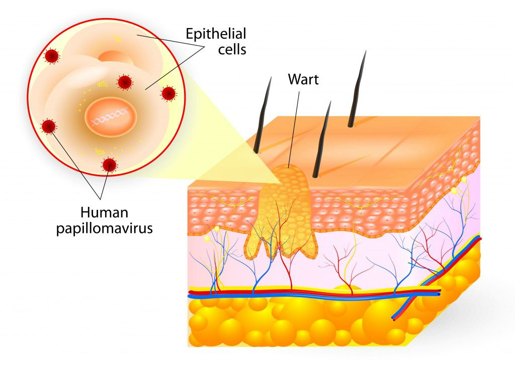 how-to-get-rid-of-genital-warts