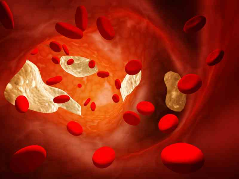 lower-cholesterol-naturally