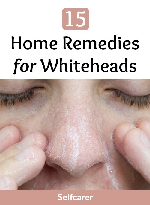 You can remove whiteheads effectively with good skin care and home remedies.