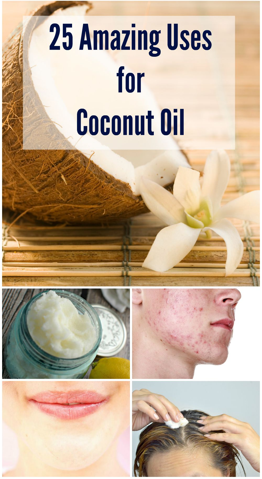 There are many uses for coconut oil. It can kill a wide range of infections, and may also help your body get rid of parasites like lice and tapeworms. It can kill certain viruses, and your body can easily digest it to absorb all its nutrition. And of course it is natural and side-effect free.