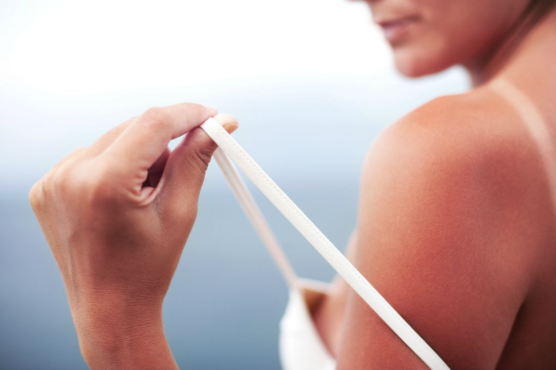 home-remedies-for-sunburn