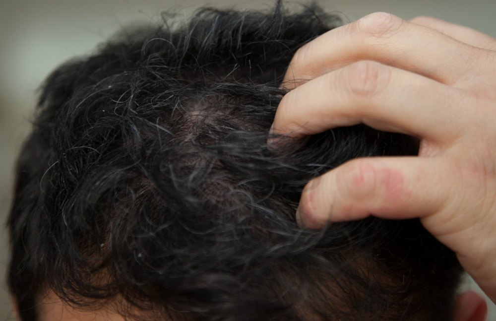 How To Get Rid Of Scalp Acne Selfcarer
