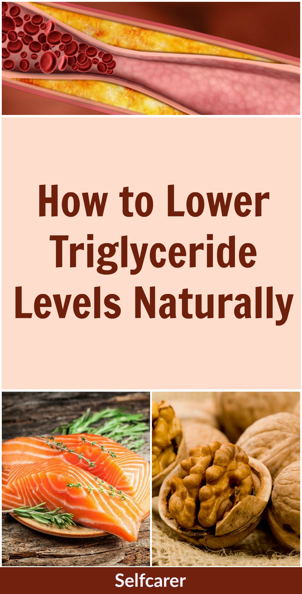 Even if you have low cholesterol levels, having high triglycerides can triple your risk of heart disease and stroke. Fortunately, there are several ways to lower your triglyceride levels if they tend to be high.