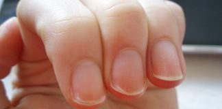 Things Your Nails Say About Your Health