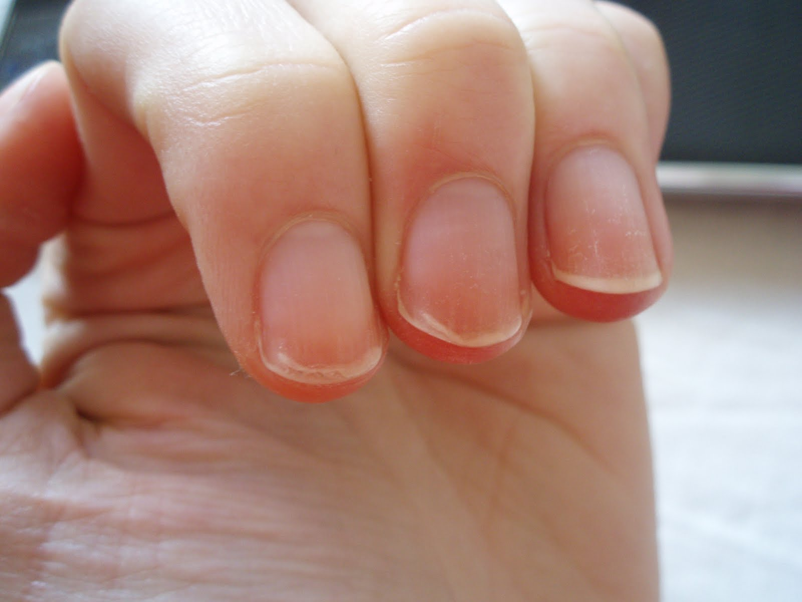14 Things Your Nails Say About Your Health - Selfcarer