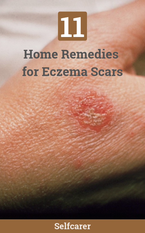 Here are the remedies to get rid of eczema scars.